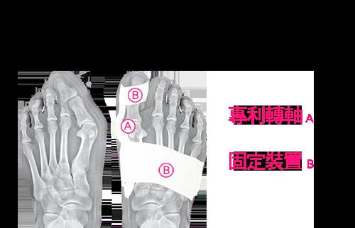 專利轉軸,轉軸讓您行走時能讓大拇指維持一直線,避免拇指異位減少手術治療的可能性。固定裝置,高品質的魔鬼氈能把壓力平均分布在大拇指與腳掌上,而不是集中在一個點。內襯材質柔軟不刺激皮膚,輕鬆穿戴無負擔。