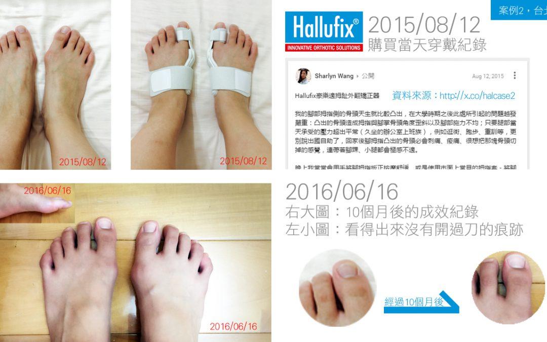 [台北市]王小姐10個月穿戴前後差異紀錄
