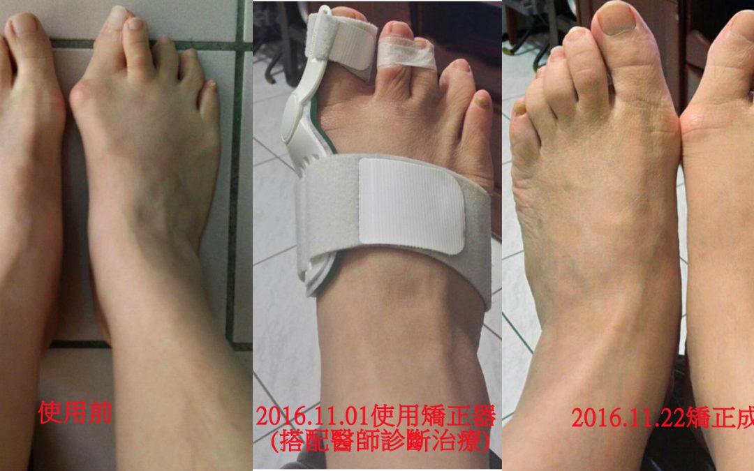 【台北】馬小姐穿戴1個月前後差異記錄