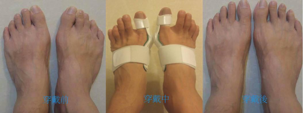【嘉義】公務員陳先生與其上司吳先生穿戴3-4個月前後差異記錄