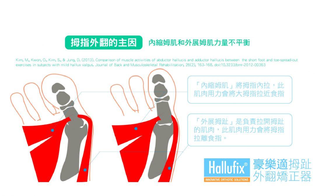 「產品運作原理」之矯正器為什麼能改善拇指外翻?
