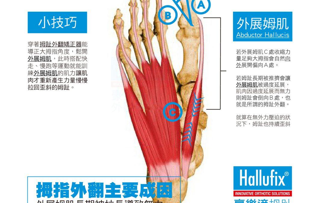 拇趾外翻的成因_肌力不平衡篇