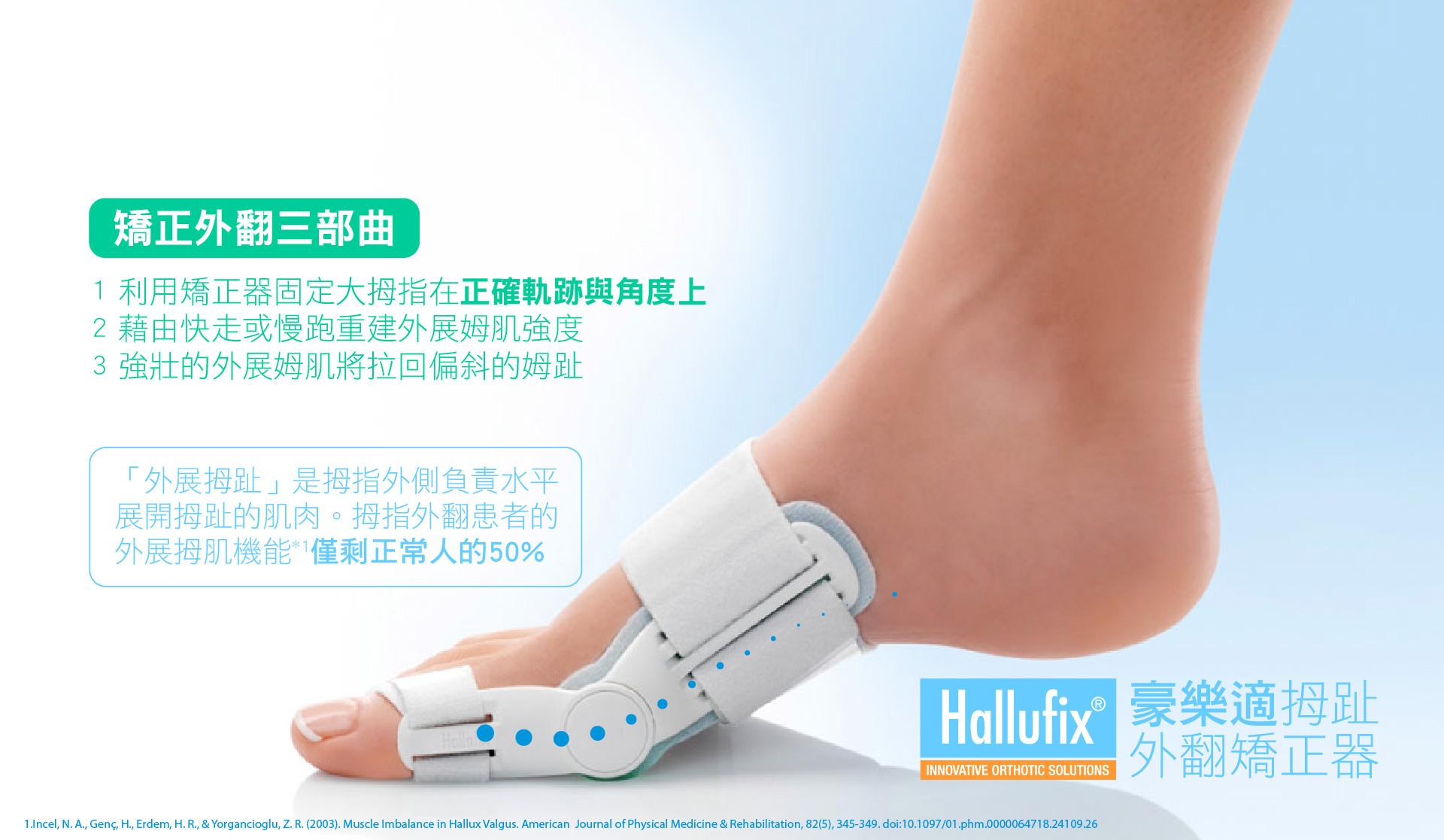 什麼是拇指外翻???拇趾外翻是一個嚴重的問題,不僅美觀,還會影響行走。有時沒有感覺,有時確會很痛,拇趾外翻多發生於女性,雖然常穿高跟鞋是這種病症的主因,但這種病症往往也是經由遺傳所產生。